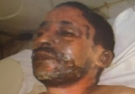 Mauritanian businessman Yacoub Oluld Dahoud who self-immolated in January 2011, leaving a note to explain his motives were to liberate his country from oppression.