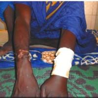 #Mauritania: Youth Tortured in Custody